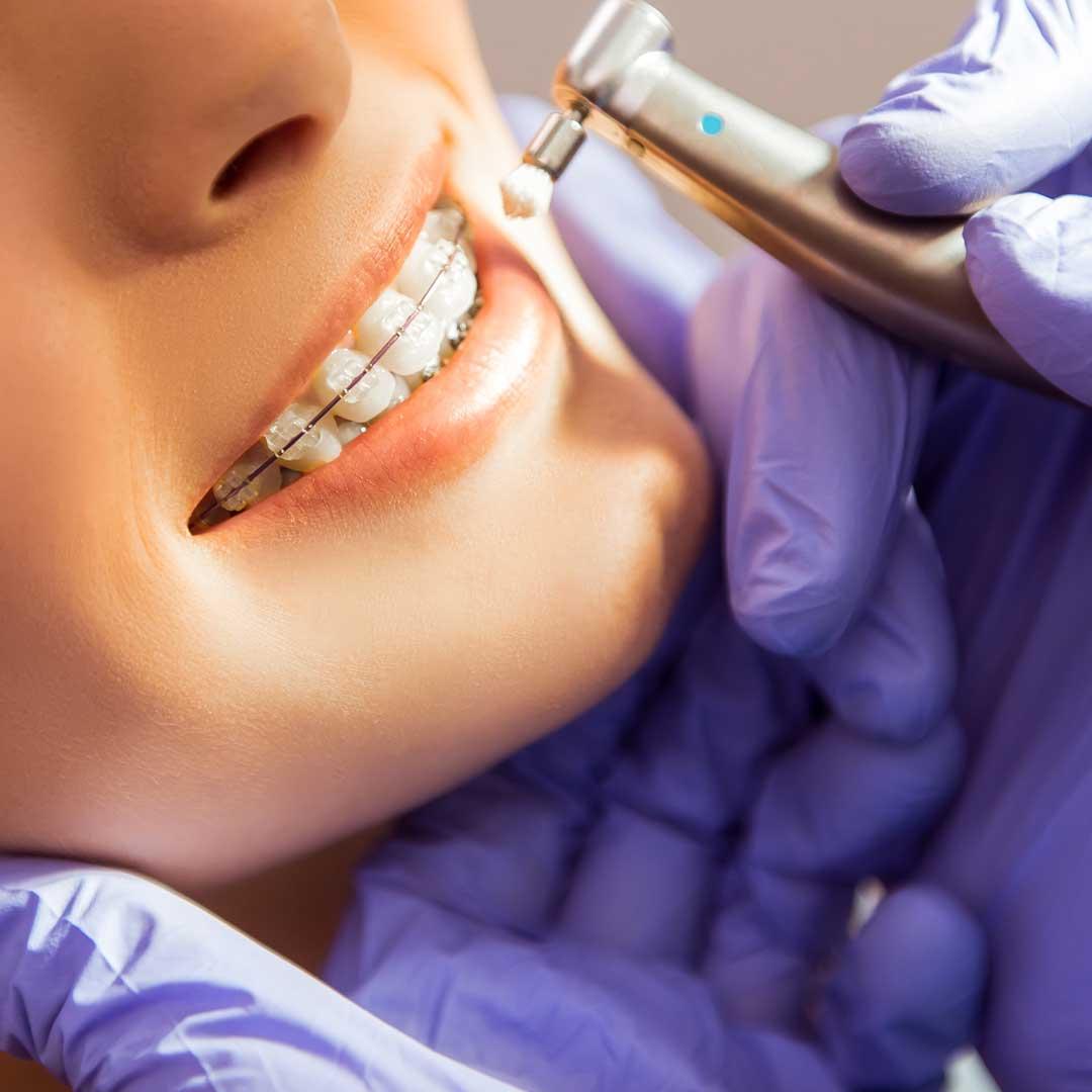 professionelle-Zahnreinigung-zahnarzt